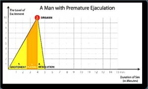 Éjaculation précoce 2 - Dr Marois